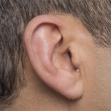 Invisible-in-canal hearing aid at Berkeley Hearing Center